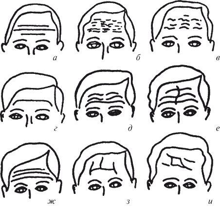 Морщины на лице. - значения по зонам. Обозначения в картинках