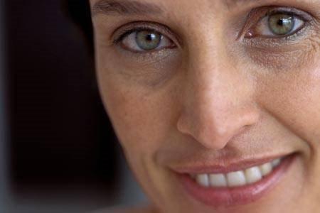 Причины темных кругов вокруг глаз у женщин. Лечение в домашних условиях