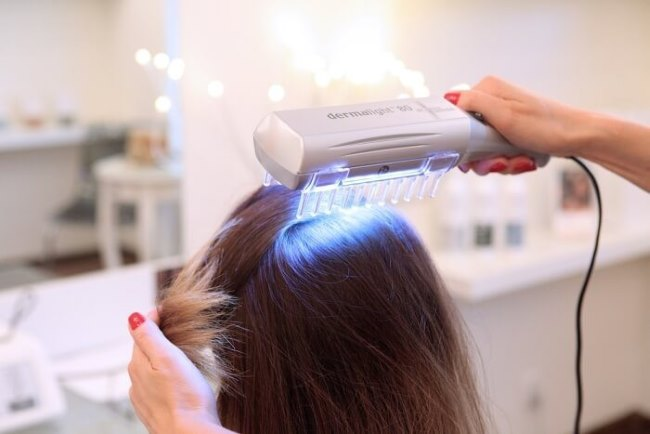 выпадение волос на голове пятнами лечение