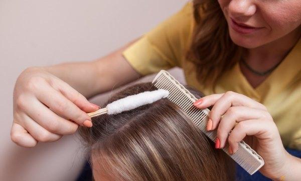 Что делать, если сильно выпадают волосы у женщин. Мнения врачей, средства борьбы с облысением