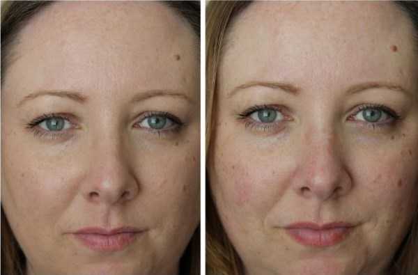 Кремы от купероза на лице. Топ-5 лечебных средств из аптеки. Преимущества и недостатки, цены