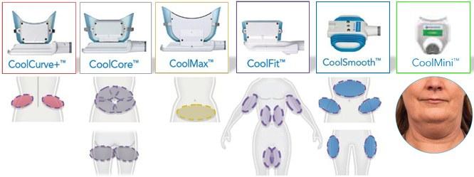 Криолиполиз - безоперационное удаление целлюлита холодом. Отзывы, фото до и после