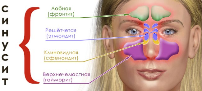 Лечение синусита у взрослых. Препараты, паровые ингаляции, промывание, компрессы