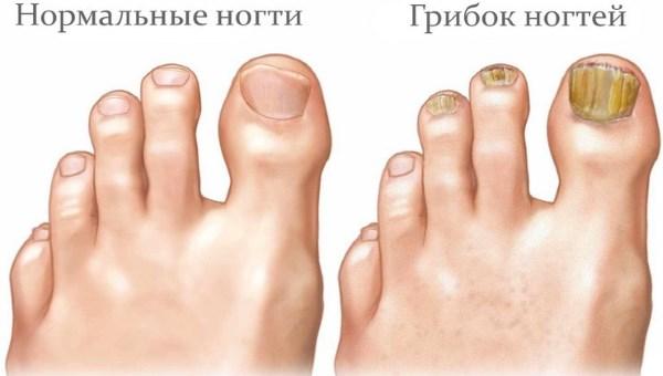 «Novastep» - мазь от грибка ногтей. Отзывы пациентов, мнения врачей. Результаты