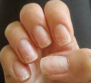 Причины ломкости ногтей на руках. Внутренние и внешние факторы, авитаминоз