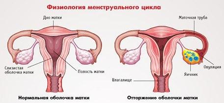 Причины, почему нет месячных, кроме беременности. Возможные болезни, другие факторы