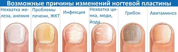 Желтеют ногти на руках причины