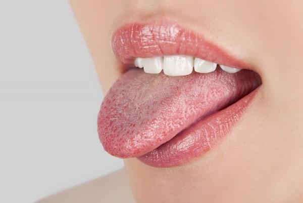 Причины желтого налета на языке у взрослых. Устранение причин налета