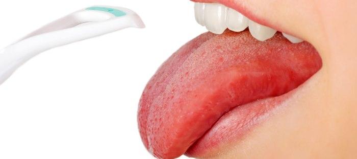 Белый налет на языке у взрослых: причины и лечение