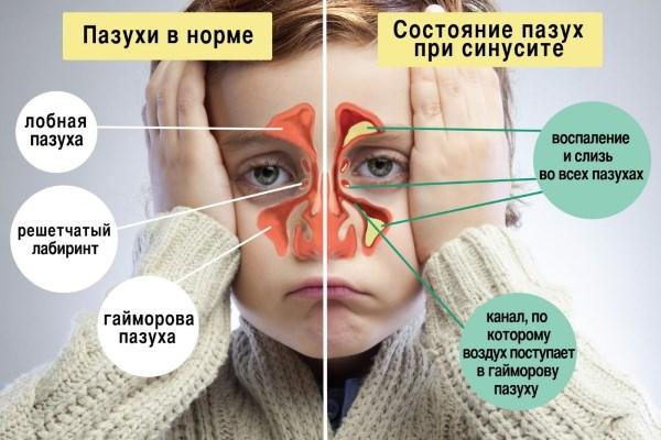 Как вылечить хронический насморк: все виды терапии Хронический насморк в домашних условиях