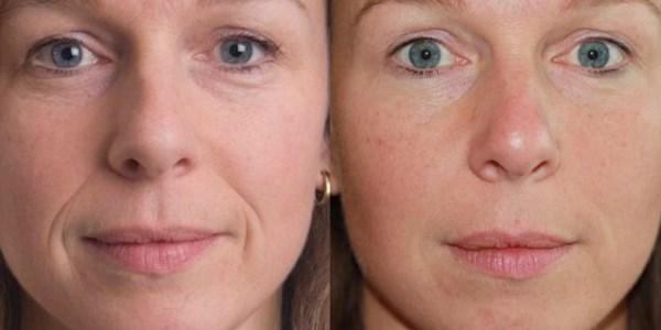 RF-лифтинг кожи лица. Отзывы врачей, мнения косметологов, результаты процедуры, фото