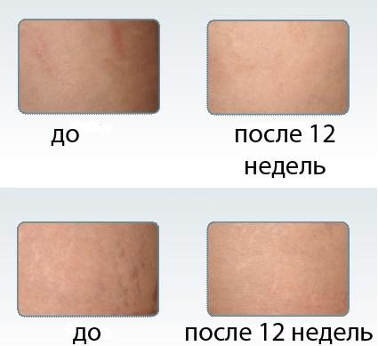 Средства от шрамов и рубцов на лице. Препараты из аптеки, народные средства
