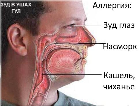 Сухость и шелушение кожи под глазами. Причины и способы лечения кожи век