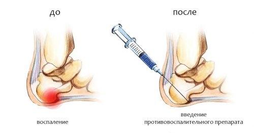 Лечение пяточной шпоры медикаментозными препаратами. Обзор эффективных средств