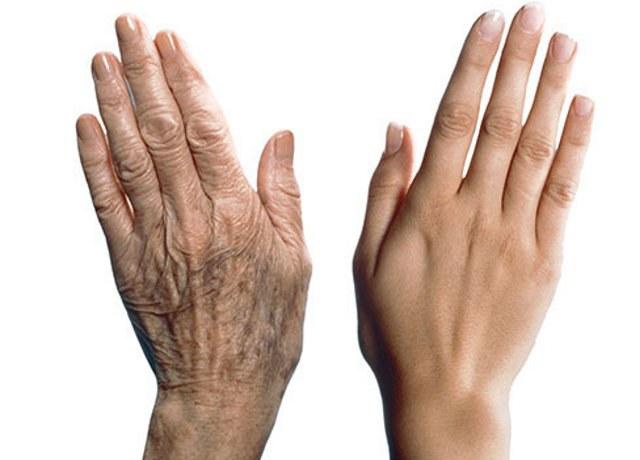 Парафиновые ванночки для омоложения кожи рук. Полезные свойства и вред