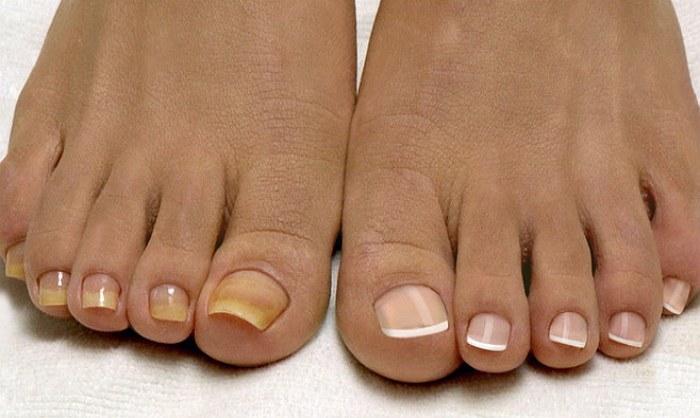 Лечение запущенного ногтевого грибка на ногах препараты