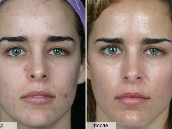 Ультразвуковая чистка лица -  что это такое, этапы, результаты, цена, фото до и после