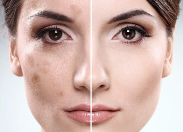 Мази от пигментных пятен на лице из аптеки и косметические средства