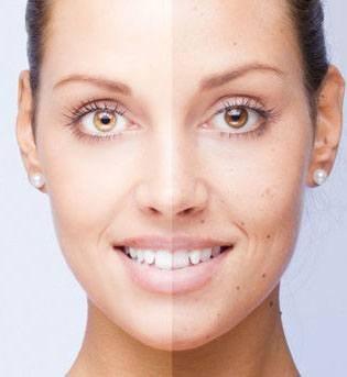 Пилинг Джесснера для омоложения кожи лица. Инструкция, фото до и после