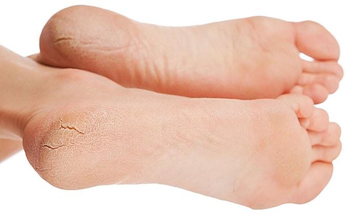 Причины трещин кожи на пятках у женщин. Лечение в домашних условиях
