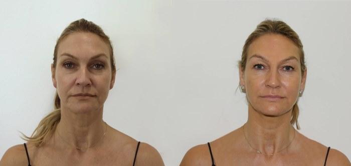 Ulthera (Альтера) – аппарат для омоложения лица ультразвуковым лифтингом. Отзывы