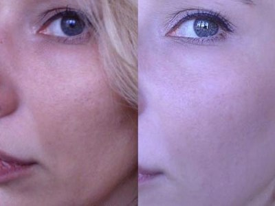Хлорид кальция в голливудском пилинге для чистки лица. Инструкция и отзывы