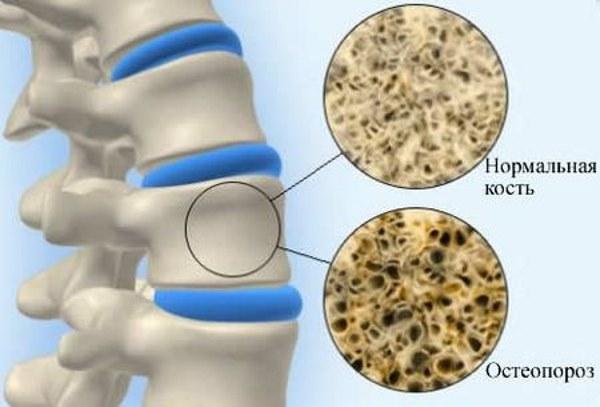 Яичная скорлупа - богатый источник кальция для организма. Польза, как принимать