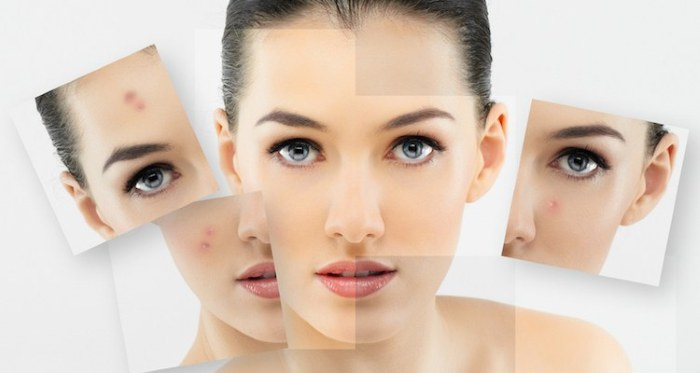 Комбинированная чистка лица - что это за процедура, этапы, цена, фото до и после, отзывы