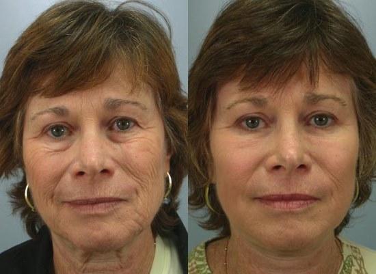 Пилинг лица - что это такое, процедура в салоне, в домашних условиях. Фото кожи до и после