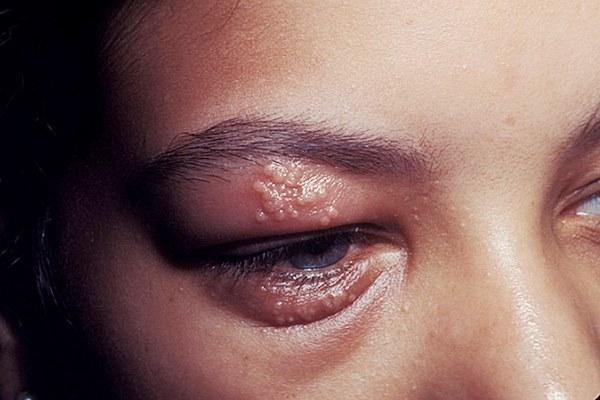 Вирусный конъюнктивит. Лечение у взрослых, симптомы, сколько ...
