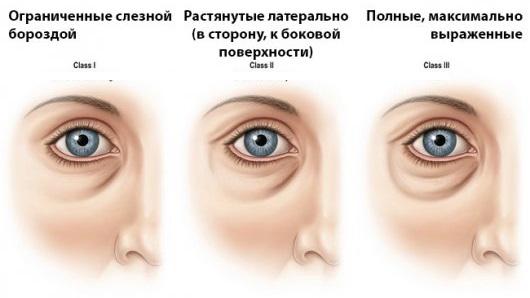 Маска от морщин, мешков и отеков под глазами после 30, 40, 50 лет, с эффектом ботокса. Приготовление и применение в домашних условиях