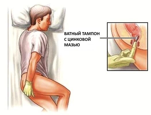 Цинковая мазь. Инструкция по применению в косметологии, гинекологии, медицине, цена, отзывы