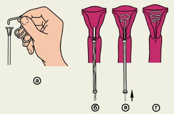 Спираль Мирена. Инструкция по применению, отзывы врачей. Последствия применения при эндометриозе, миоме, предменопаузе
