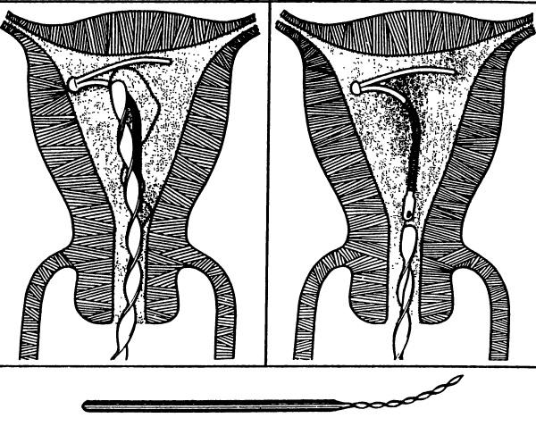 Спираль Юнона Био-Т с серебром. Механизм действия, эффективность, инструкция по применению, отзывы, цена