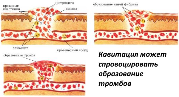 Кавитация (ультразвуковая липосакция) - что это в косметологии, действие, эффективность, противопоказания, стоимость