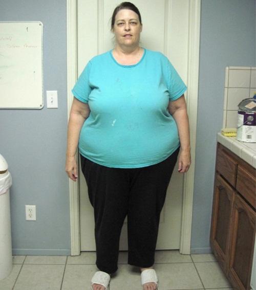 Невероятные истории похудения. Фото до и после - удивительные, но правдивые