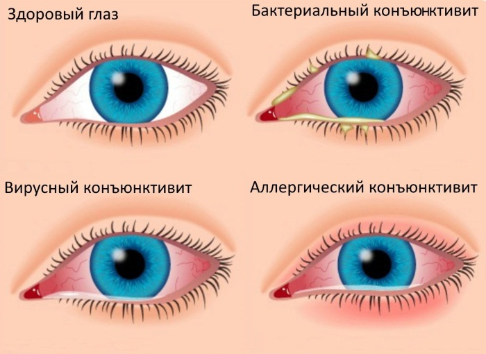 Патчи для глаз: гидрогелевые, корейские, коллагеновые, гелевые, золотые наклейки. Рейтинг лучших, отзывы