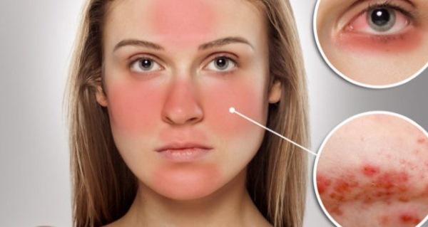 Краснеет и шелушится кожа на лице, чешется, сохнет после алкоголя, чистки, возле носа, брови. Причины, что делать