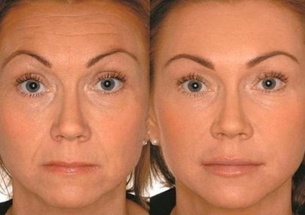 Плазмолифтинг лица. Фото до и после, отзывы, цена процедуры, как делается в косметологии, лазерная методика, противопоказания, побочные эффекты