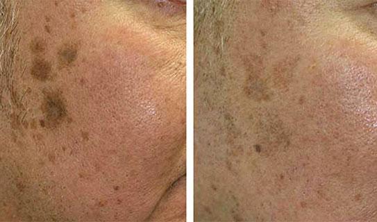 Ультразвуковая, вакуумная, комбинированная, атравматическая, мануальная чистка лица у косметолога. Цены процедур, эффективность