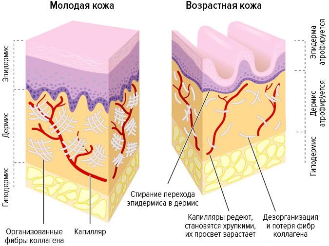 Как ухаживать за сухой кожей лица зимой и летом. Профессиональные и народные средства