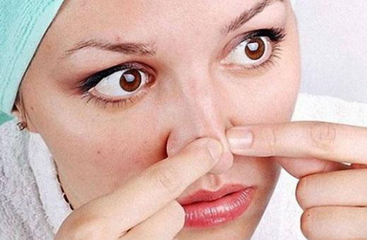Средства для сужения пор на лице. Крема, маски, сыворотки, аптечная косметика, эфирные масла, лосьоны, народные средства