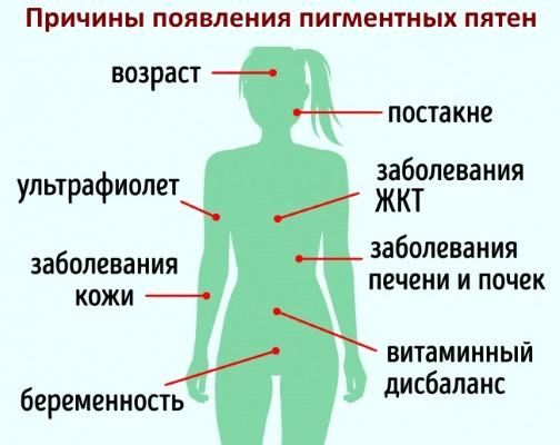 Как избавиться от пигментации на лице после родов, загара. Способы, рецепты в домашних условиях