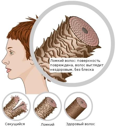 Как пользоваться кокосовым маслом для волос, лица, тела, загара, от растяжек, целлюлита