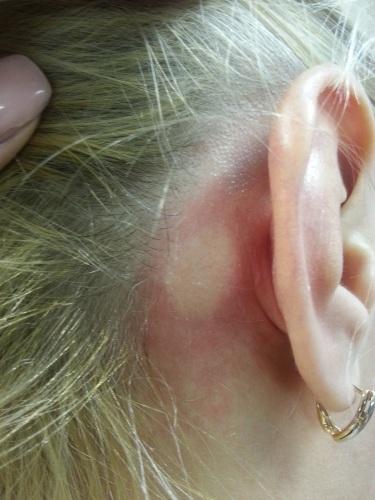 Аскорбиновая кислота в ампулах. Инструкция по применению для лица, волос