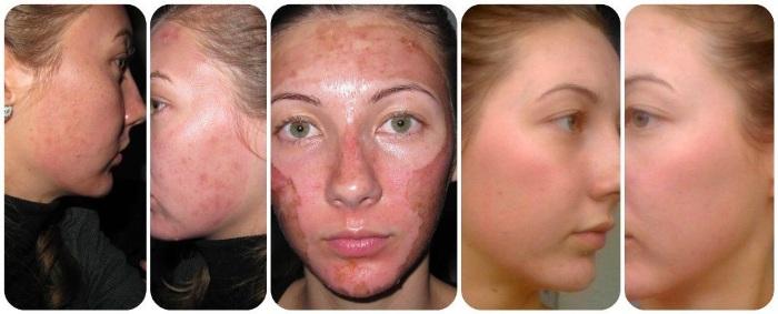 Химические пилинги для лица профессиональные, срединные, поверхностные. Виды в салоне, рецепты дома