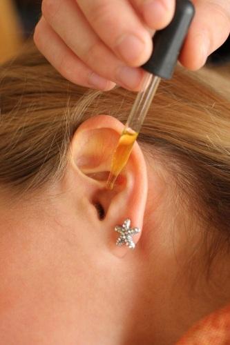 Шелушатся уши внутри. Причины и лечение, препараты, народные средства