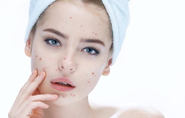 Холика Холика (Holika Holika) ББ-крем для проблемной кожи, увлажняющий. Оттенки, отзывы