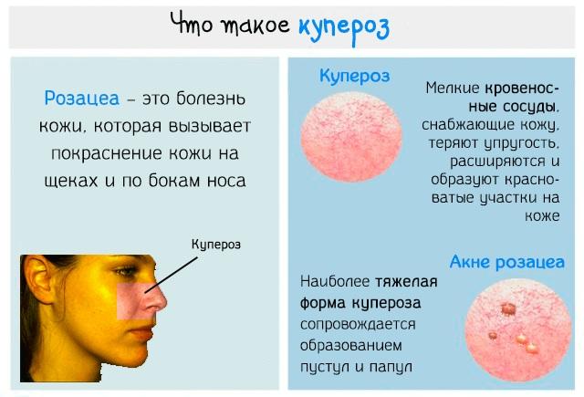 Корейская пилинг-скатка для лица - косметика для глубокого очищения. Отзывы