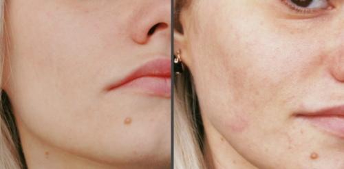 Карбокситерапия Аравия (Aravia). Отзывы косметологов, инструкция, где купить, цена